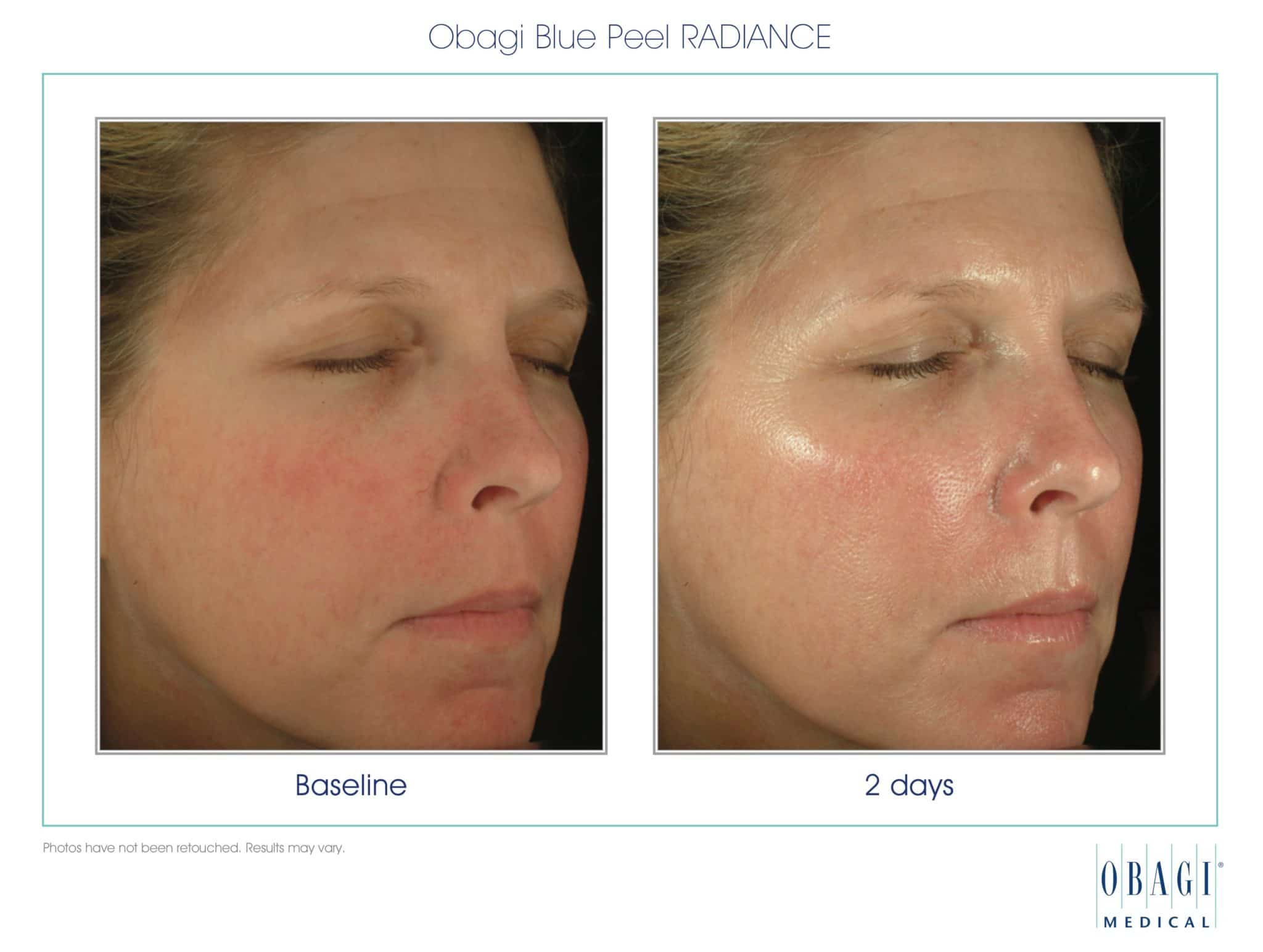 chemical peel bend or